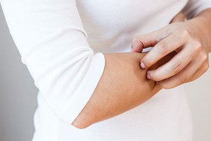 Scabs and scars on the client's arms aren't automatically a telltale sign, but could point to DP behavior if there are no pests at the account. Photo: ©iStock.com/simarik